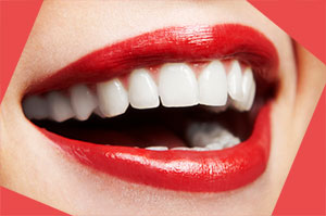 Chasing Your $25,000 Smile Will Make A Man Want You Forever